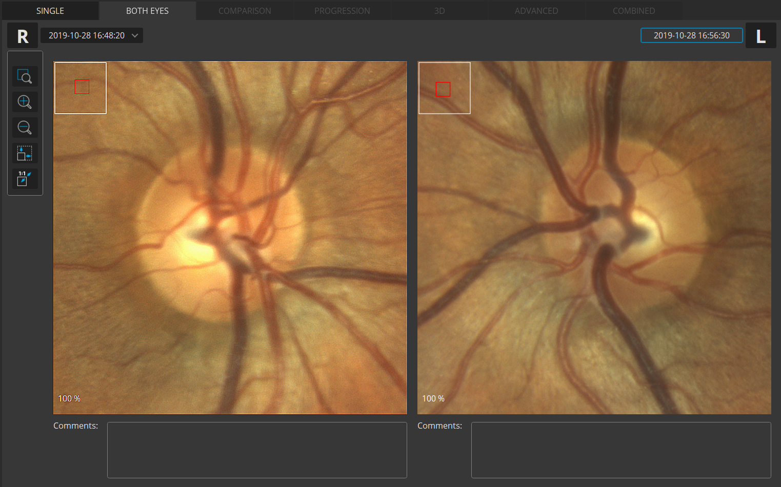 Both eyes Fundus Photo view