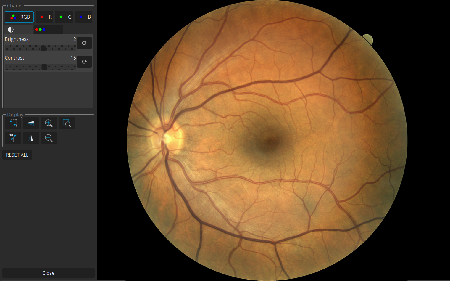 Full screen Fundus Photo