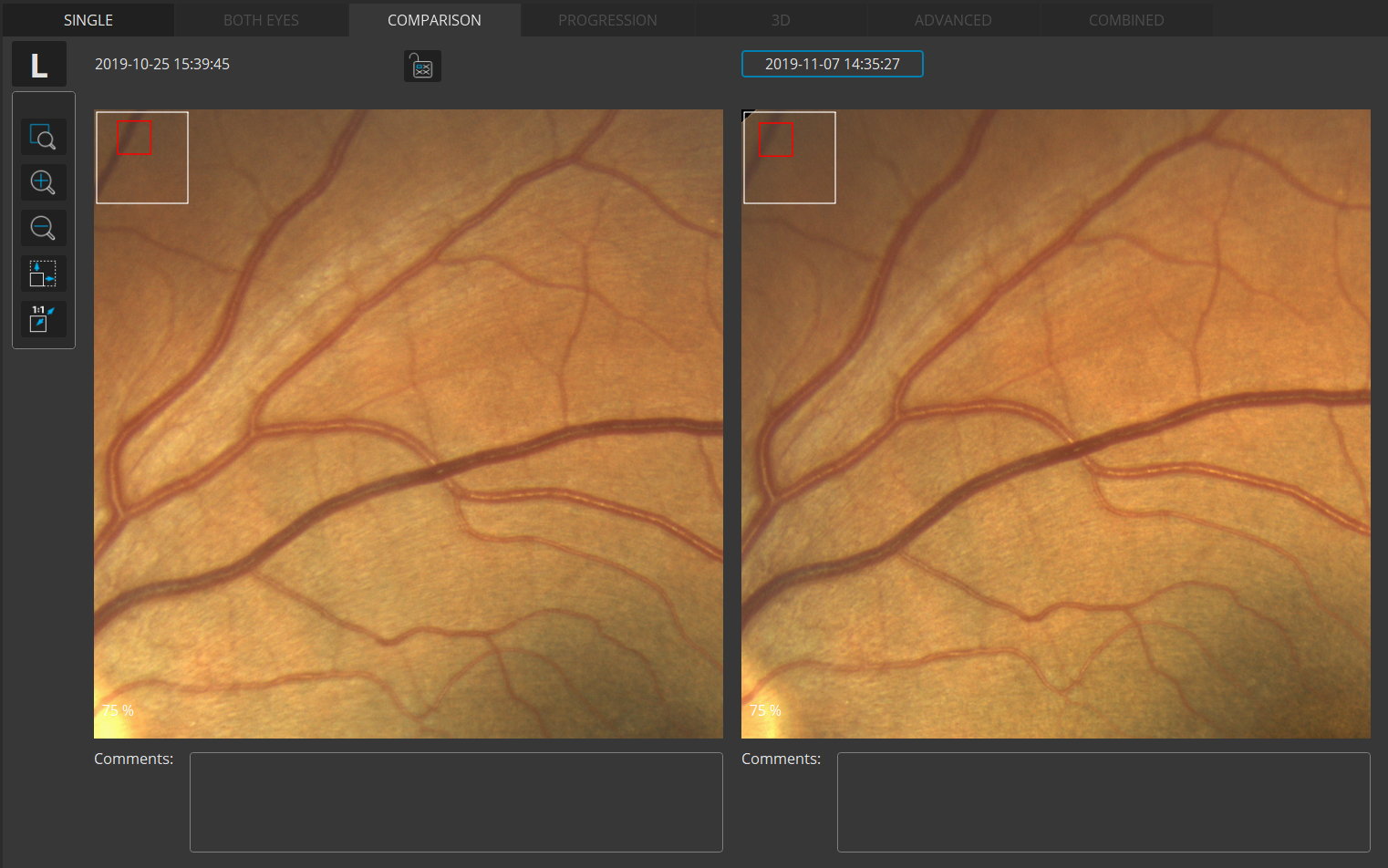 Fundus Photo Comparison view