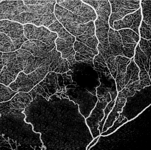 OCT Angiography NFA