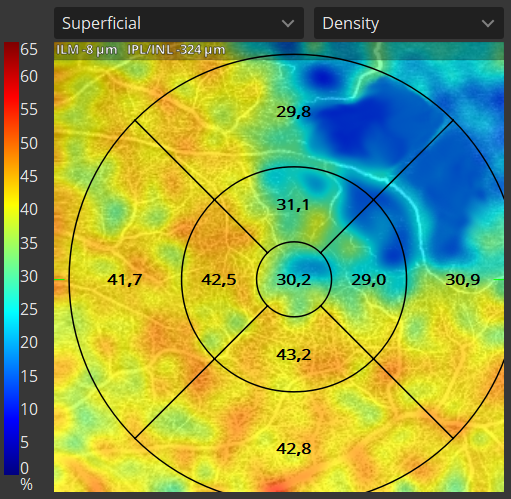 Quantification Vessel Density Map