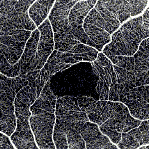 OCT Angiography FAZ – Foveal Avascular Zone