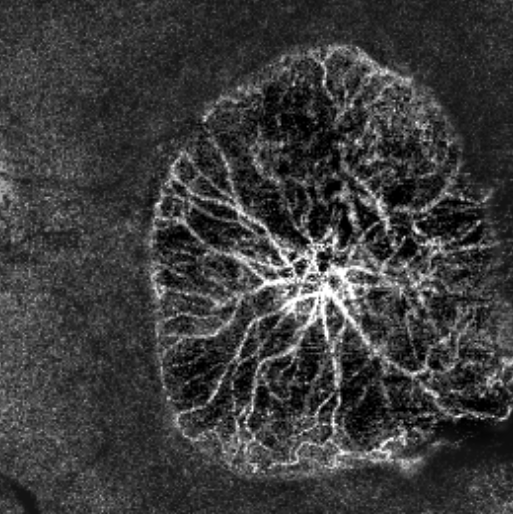 OCT Angiography VFA – Vascular Flow Area