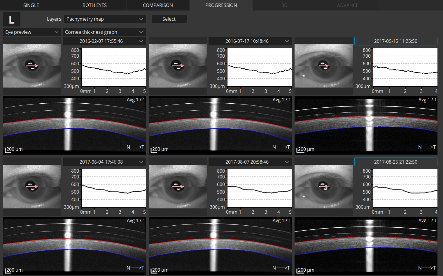 Anterior Cornea Progression