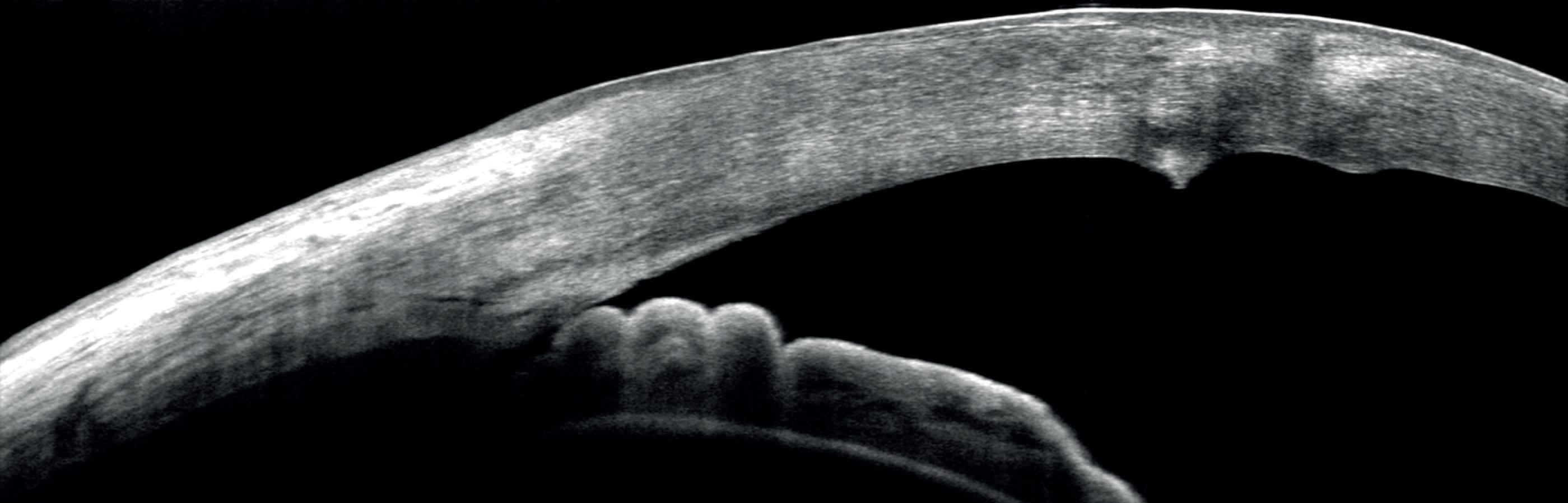 Anterior scan, Cornea Guttata with corneal scaring